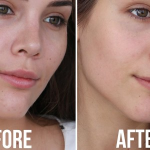 Best natural skin care routine for acne prone skin