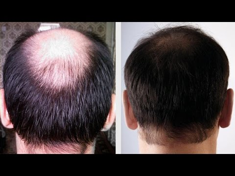 How To Regrow Hair Naturally Health750