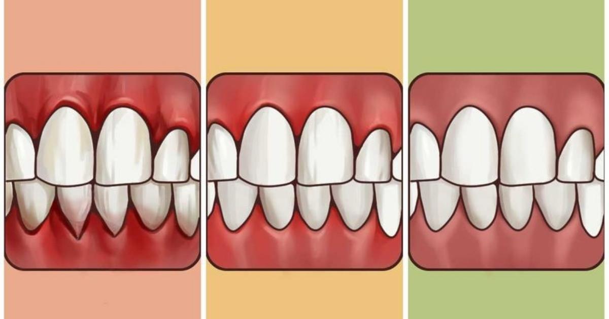 You are currently viewing 打擊牙齦炎!牙齦疼痛有沒有辦法減緩?這幾種方法讓你跟可惡的牙齦炎說bye bye!