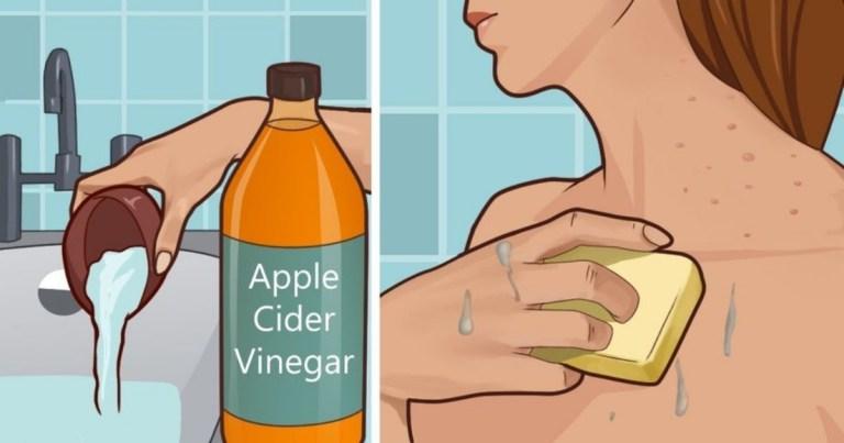 Read more about the article 【成份功效】治療皮膚問題可以靠「蘋果酒醋」?蘋果酒醋的幾大好處你一定要知道!