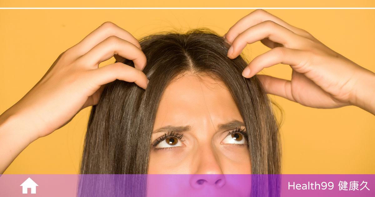 頭皮屑掉不停?了解導致頭皮屑的原因,擺脫討人厭的頭皮屑