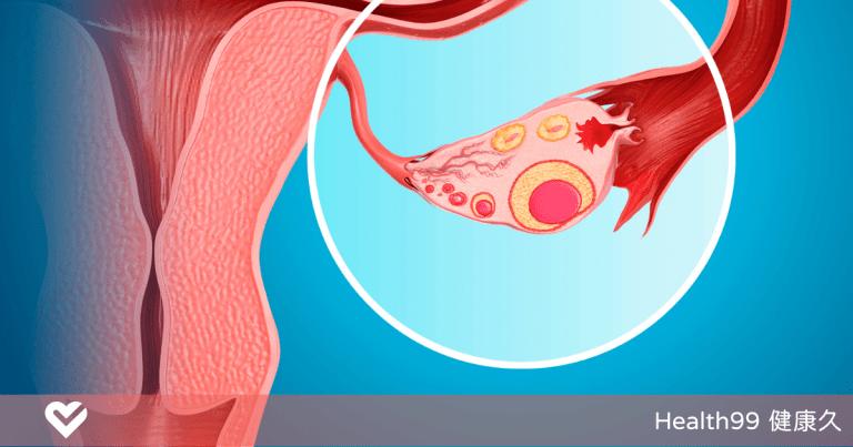 Read more about the article 【月經保養】沒排卵也會來月經!符合這些特徵可能就是「假性月經」!造成原因是?
