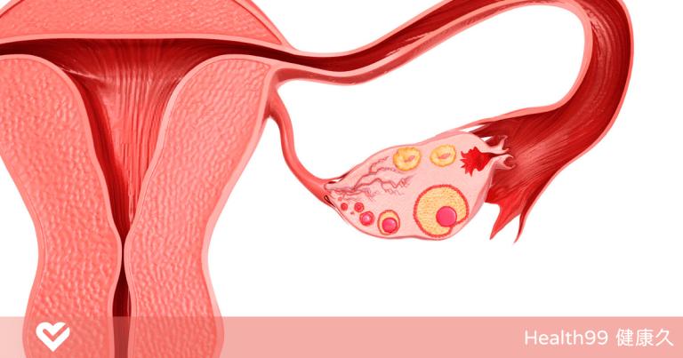 Read more about the article 子宮內膜增厚時有哪些症狀?子宮內膜厚到多少正常?是否會影響懷孕?