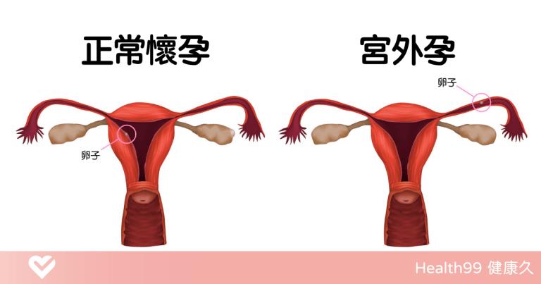 Read more about the article 【孕婦知識】「宮外孕」是什麼導致的?有什麼症狀?可以治療嗎?