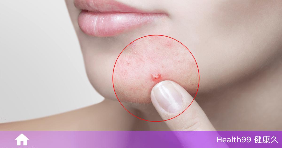 You are currently viewing 臉上長痘痘是因為什麼原因引起的?這「8個」原因你一定要知道!