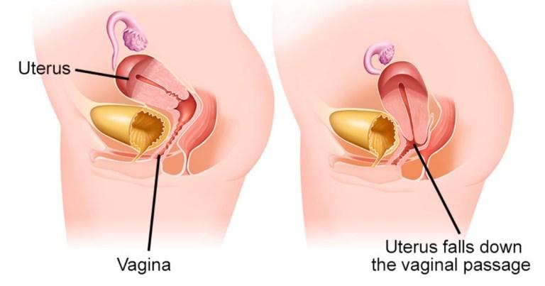 Read more about the article 子宮脫垂主要是「這5種原因」導致的?有什麼表現以及如何預防?