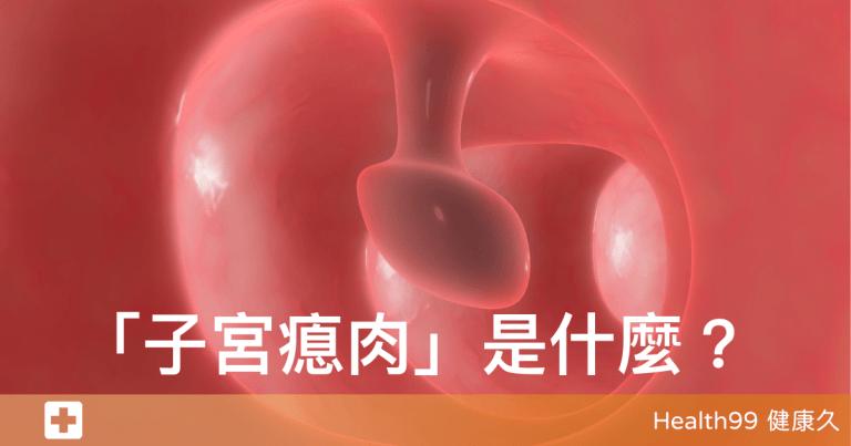 Read more about the article 子宮瘜肉是什麼?哪些女性比較容易患此病,會不會導致難以懷孕?
