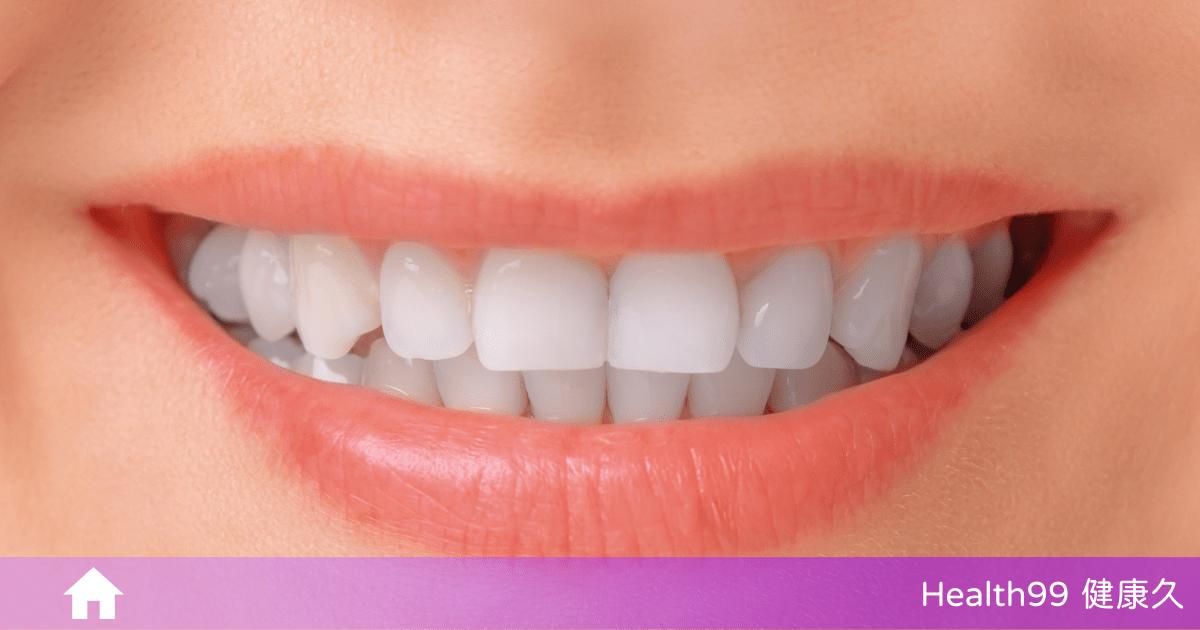 Read more about the article 牙菌斑是什麼?會對口腔、牙齒造成什麼影響呢?