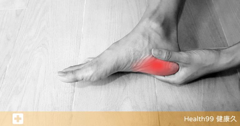 Read more about the article 你以為走得多是好事?小心「足底筋膜炎」悄悄盯上!該如何預防和治療?