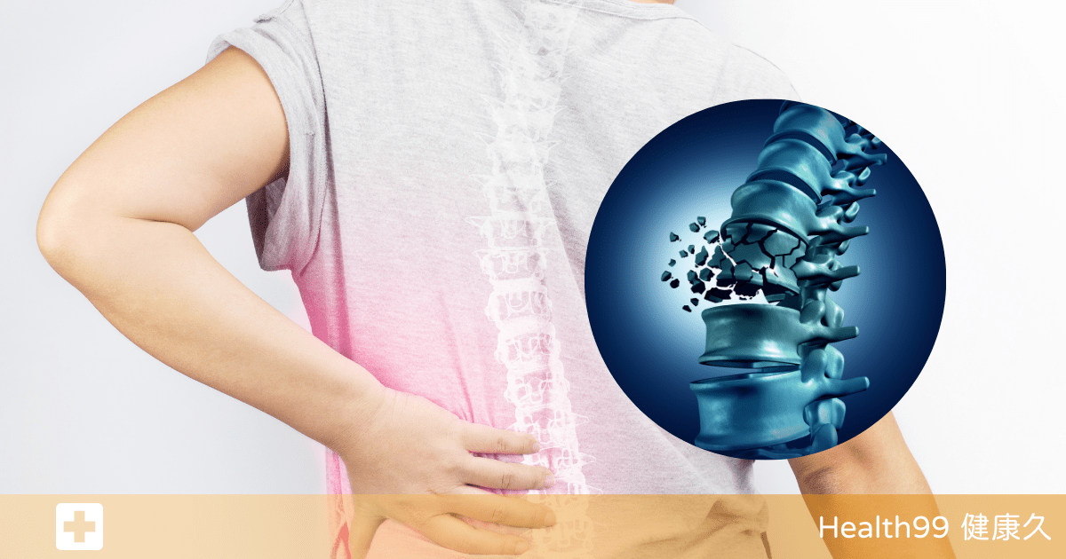 Read more about the article 更年期以及老年骨質酥鬆人群,該如何設計高鈣飲食呢?醫生告訴你