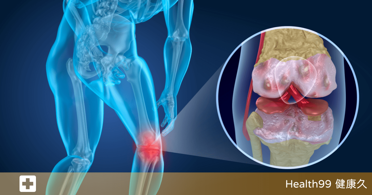 Read more about the article 骨關節炎就是「凍出來的」?一文講清致病原因和預防方法!該如何治療?