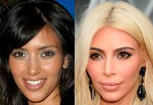 Ethnic Cosmetic Surgery