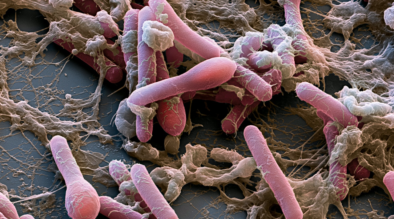 What Kind Of Bacteria Can Be Found In Food