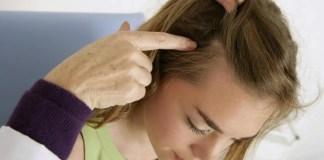 Hair Fungus infection