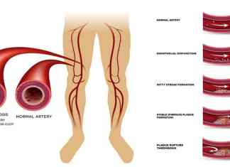 Narrow Arteries