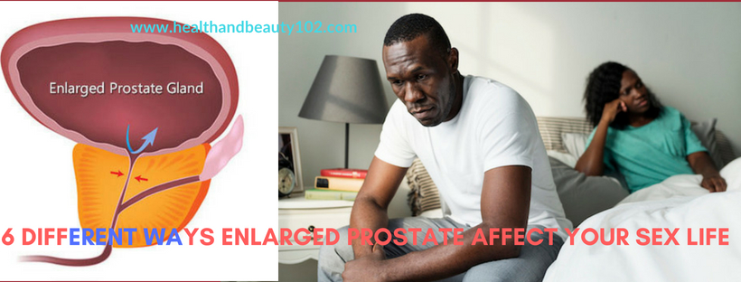 enlarged prostate and sex