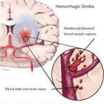 https://healthandbeauty102.com/HOWTOPREVENTSTROKE,REDUCERISKS OFGOINGDOWNWITHSTROKE