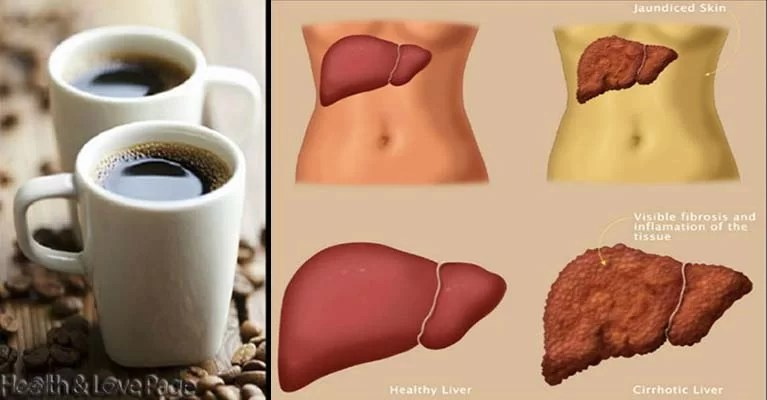 What 2 Cups of Coffee per Day Can Do for Your Liver