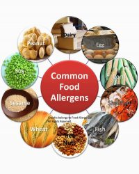 Most Common Food Sensitives