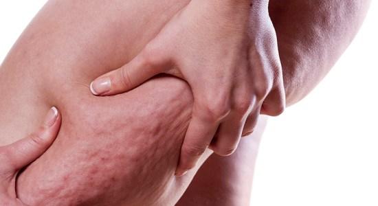 Cure Cellulite