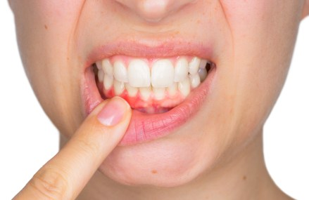 Gum Disease 101 – Everything You Need to Know