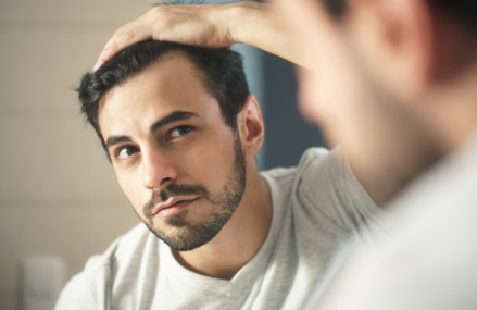The Psychological Impact Hair Loss Can Have On Your Mental Health