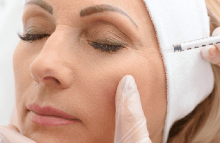 Common Questions About Botox Injections and the Responses