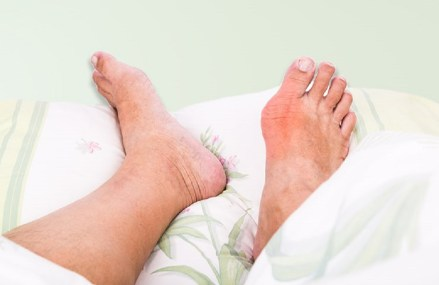 To Treat or Not to Treat (to Target) in Gout