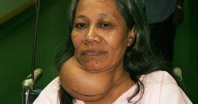 Thyroid Problem in Bangla
