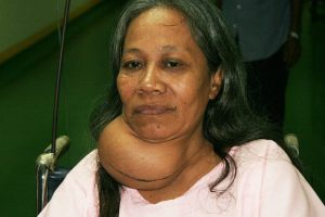 Thyroid Problem in Bangla
