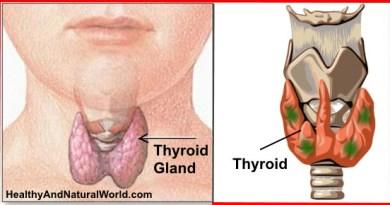 Thyroid Gland Problem