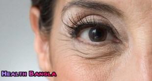 Crowfeet-Wrinkle
