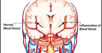 Cerebral-Vasculitis