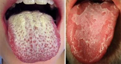 White-Tongue