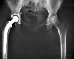 total hip replacement surgery implant photo xray