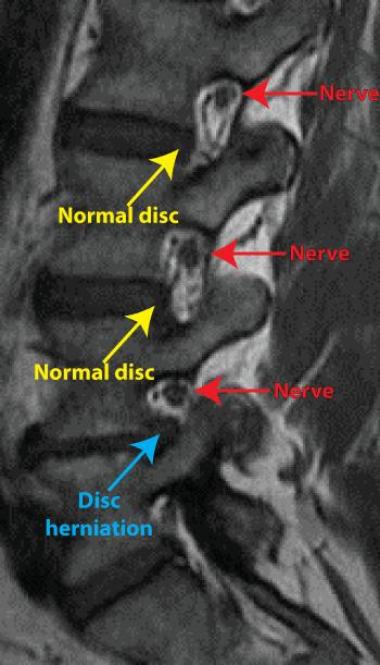 MRI Step 5