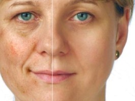 Treat-Post-Inflammatory-hyperpigmentation