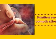 Umbilical cord complications