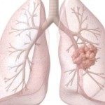 What is Mesothelioma? 4 Ways it can Affect your Health