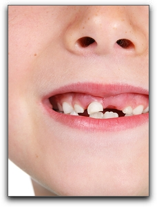 Oral Rinses For Healthy Children's Teeth In Port Charlotte
