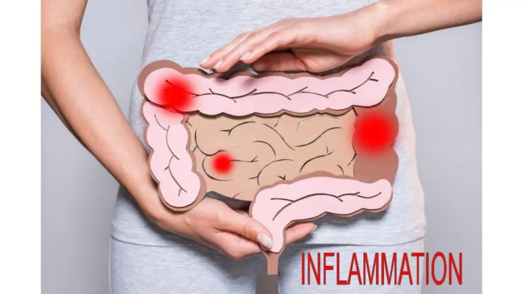 The Role Of Inflammation | El Paso Texas Chiropractor