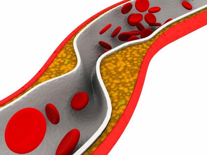 Cholesterol plaque in artery