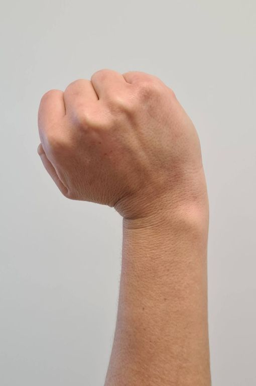 A picture of radial deviation of the wrist.