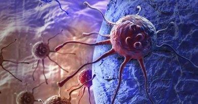 गहराई में छिपी कैंसर कोशिश्काओं का पता लगाएगी यह तकनीक, जानिए क्या है यह