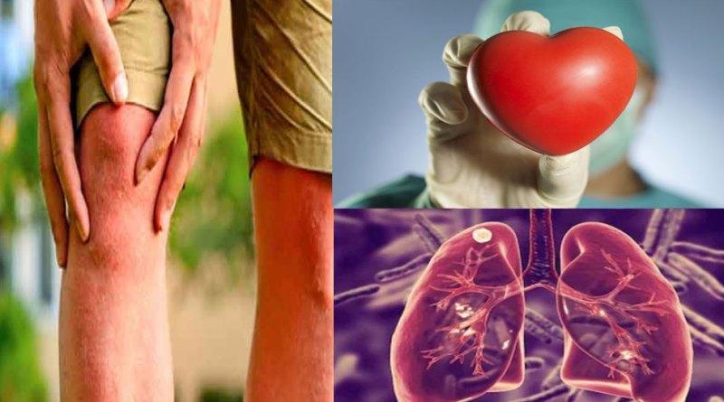 हृदय और फेफेड़ों के लिए खतरनाक हो सकता है जोड़ों का दर्द
