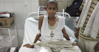 राजस्थान में लिक्विड नाइट्रोजन से हड्डी के कैंसर का सफल इलाज