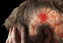 ब्रेन स्ट्रोक में सुनने-देखने की क्षमता खो देता है मरीज, दुनिया का हर छठा व्यक्ति है इसका शिकार