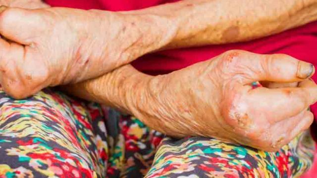 जल्द इलाज से ठीक हो सकता है कुष्ठ रोग, जानें