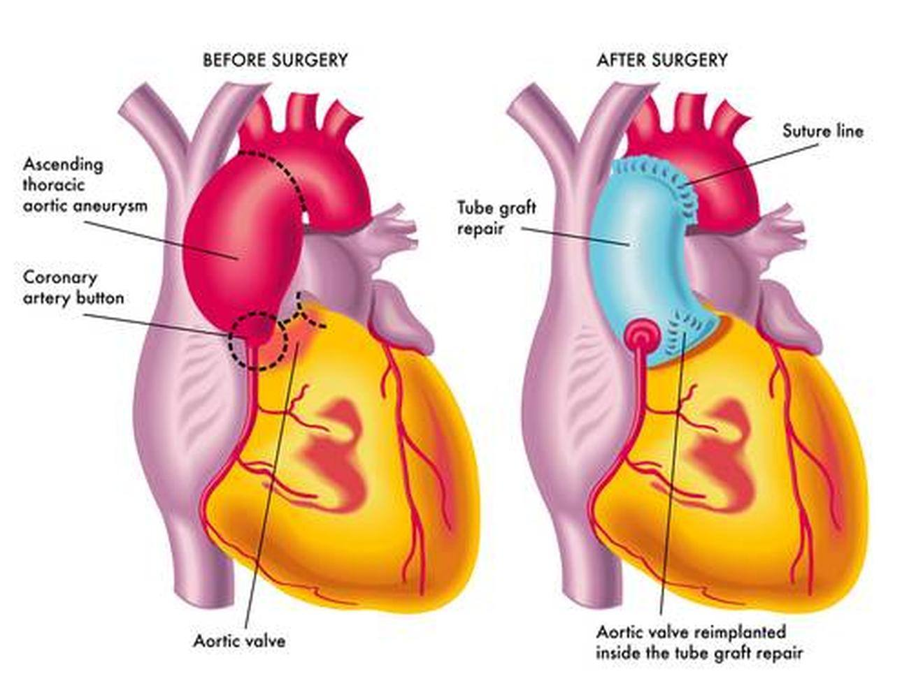 Pictures Of Ascending Aorta