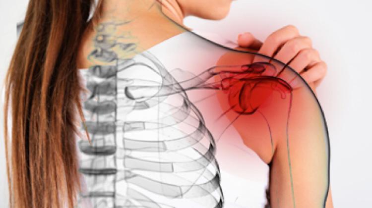 hombro congelado en la fibromialgia